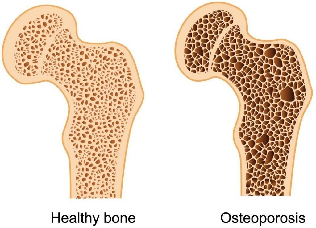 Diagram showing the difference between healthy bone and Osteoporosis